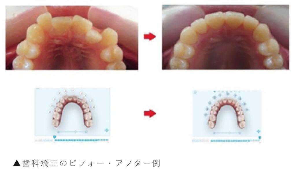 歯科矯正のビフォー・アフター例