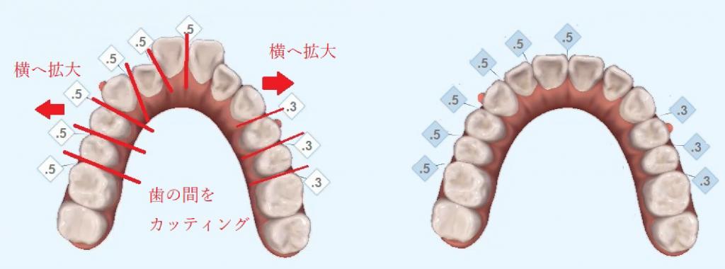 非抜歯の治療例1_イメージ