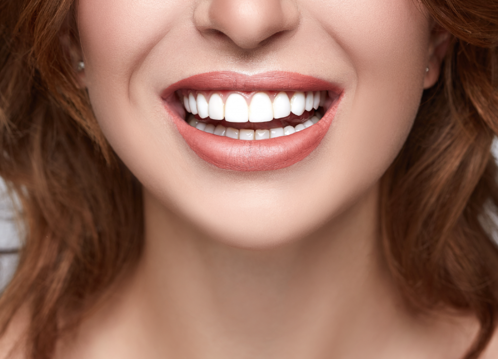 短期・前歯の歯並び矯正_イメージ
