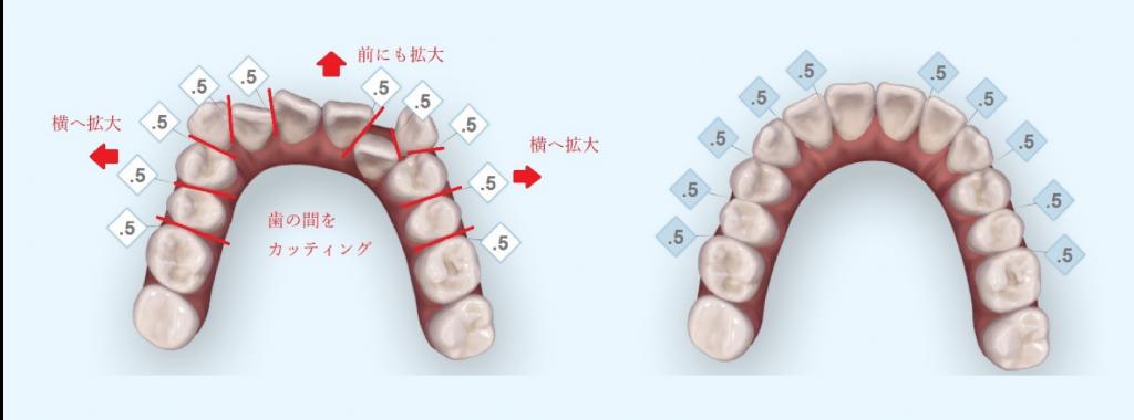 非抜歯の治療例2_イメージ