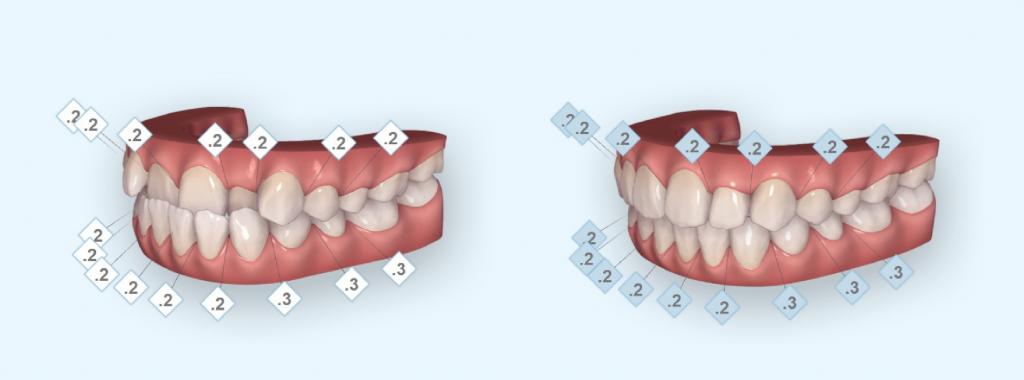 非抜歯の治療例3_イメージ