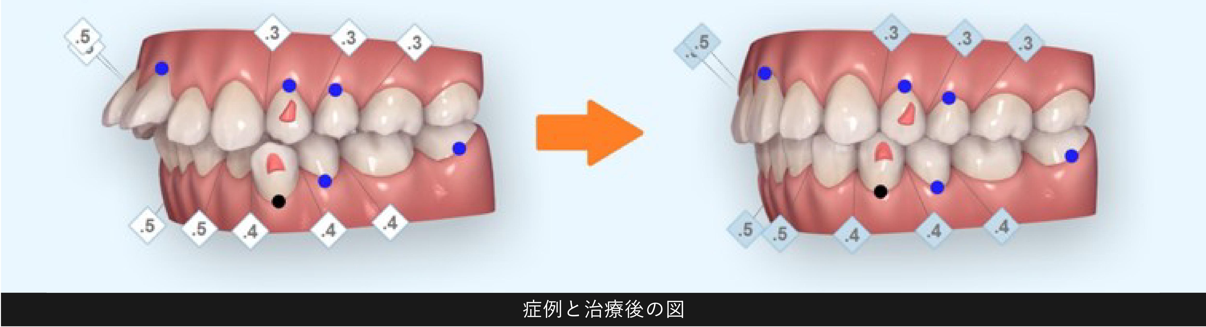 症例と治療後の図