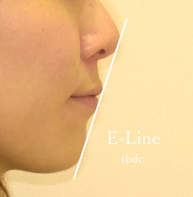 E-line(Eライン)