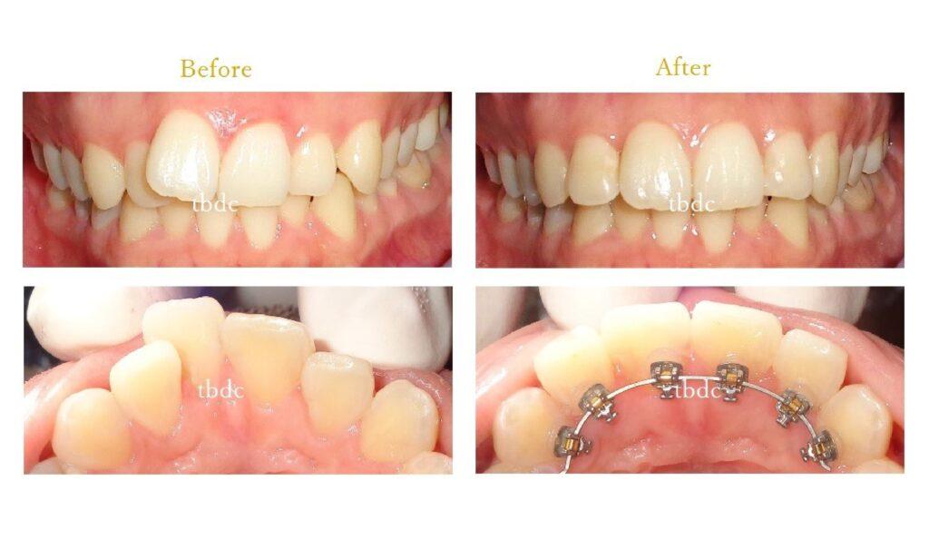 治療例3:出っ歯矯正