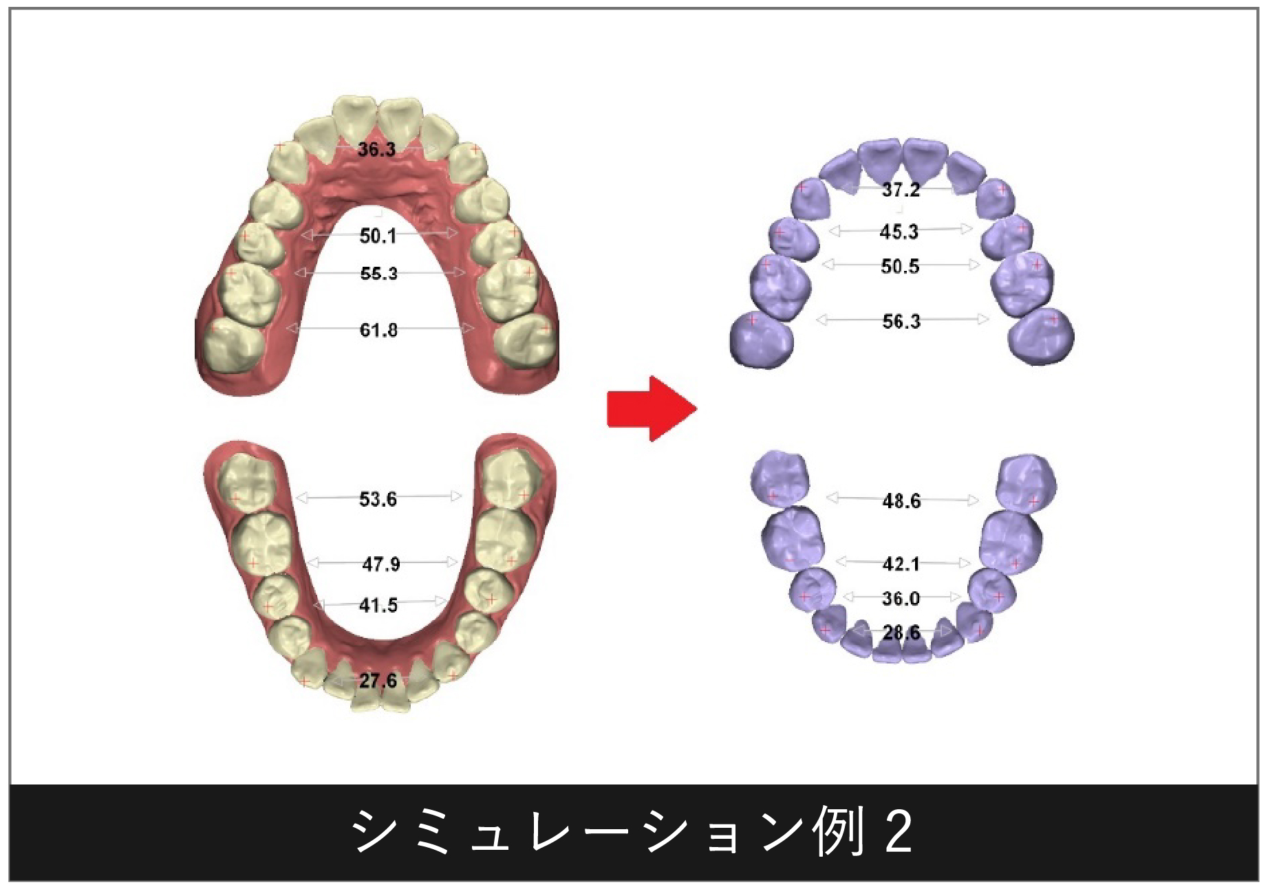 デジタルセットアップシミュレーション例2