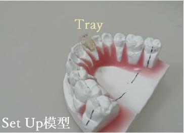 正治療後の歯並びを想定した歯型(セットアップ模型)