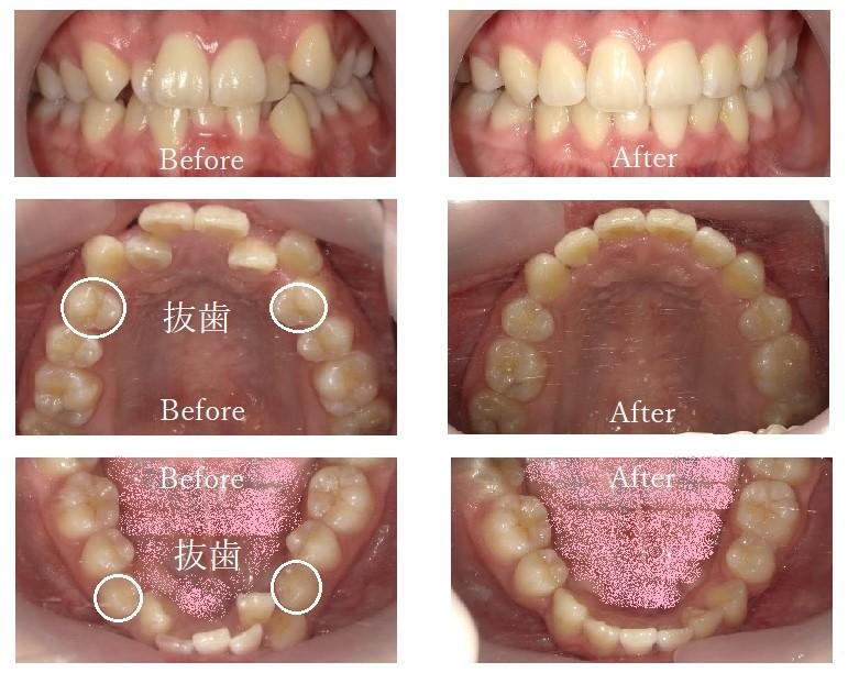 治療例4:八重歯・前歯がガタガタの治療例