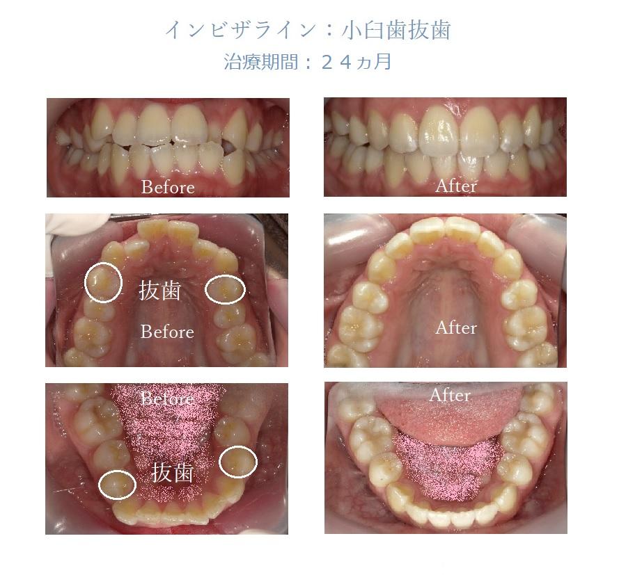 治療例1:インビザライン:小臼歯抜歯