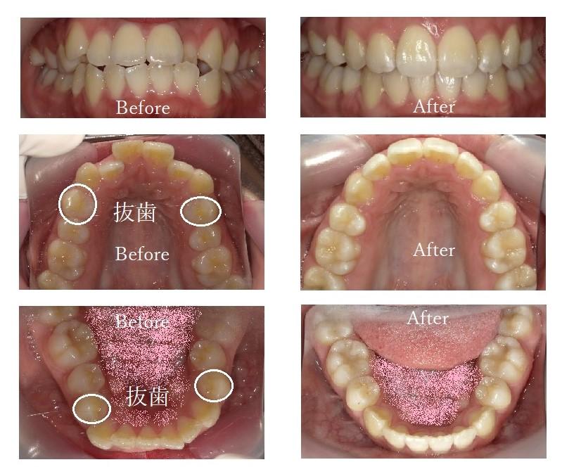 治療例2:八重歯・口ゴボ