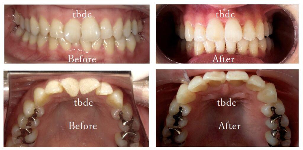 治療例3:前歯がガタガタの治療例